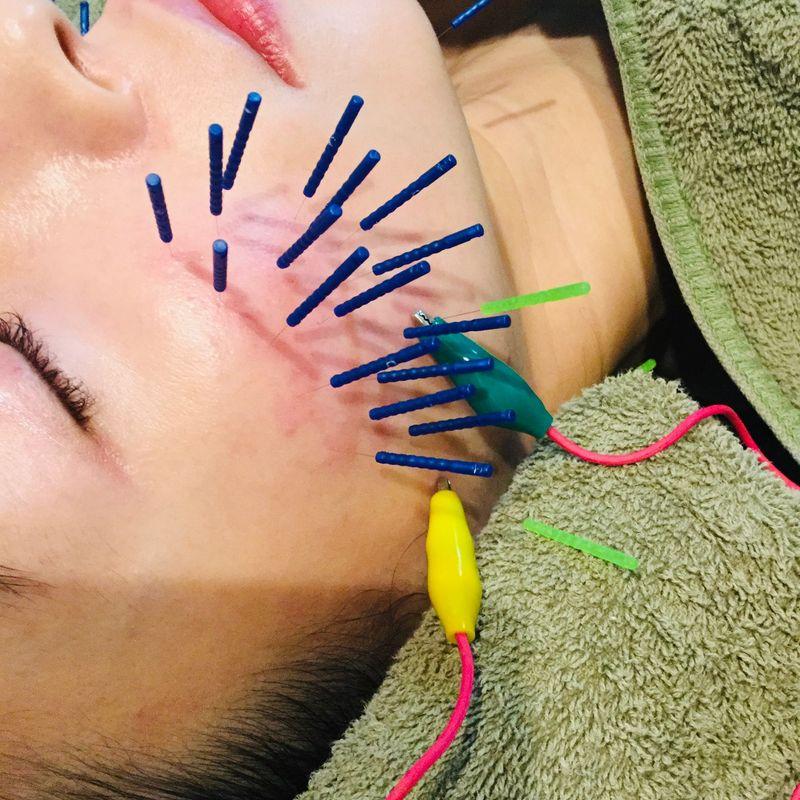 美容鍼メンテナンスと美容皮膚科