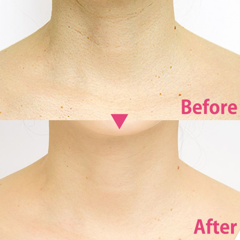 【Before→After付き】マスクをしていると目立つ、首の【深いシワ】と【プツプツ】対処法