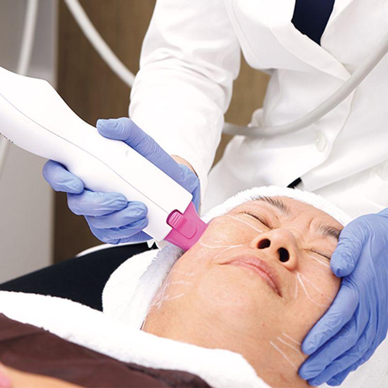 【サーマクールリフト】なら誰にもバレずにタイトニング!美容医療の【たるみ治療】を読者が体験しました