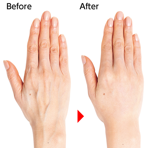 浮き 手 の 血管 手の甲の血管が浮き出る原因は老化!40代50代女性手の老化改善方法とは?